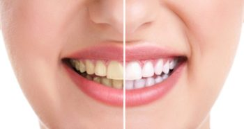 Home-Remedies-for-Yellow-Teeth