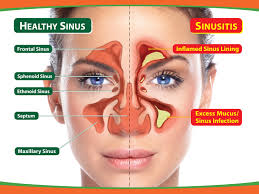 20 Simple Home Remedies for Reducing Sinus Problems